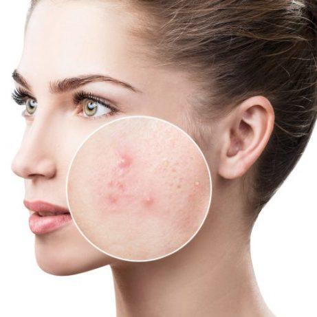 el acné en mujeres