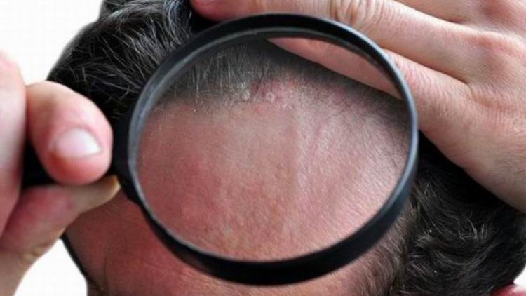 consejos para la dermatitis seborreica