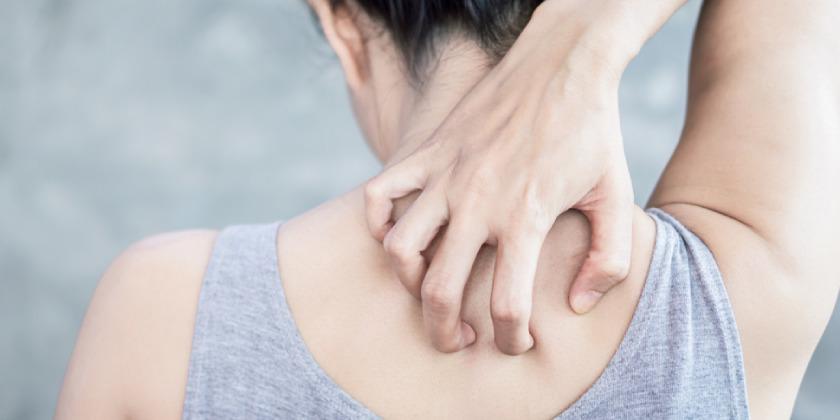 tips para la herpes zoster