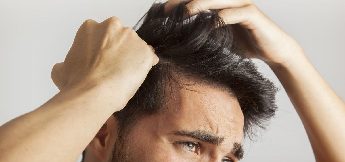 problemas con la alopecia
