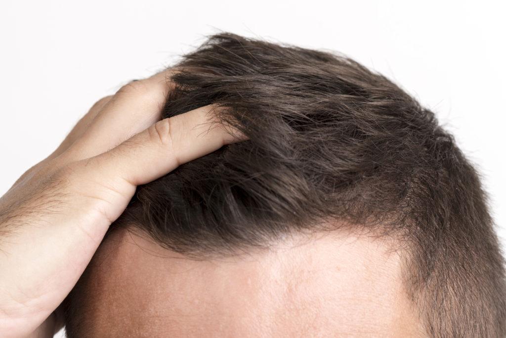 tienes alopecia puedes hacer esto
