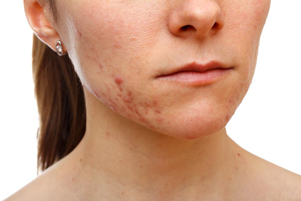 consecuencias del acné hormonal